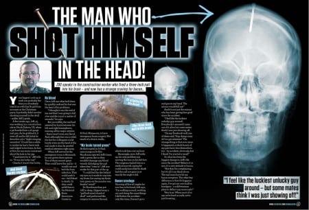 man shot himself in head with nail gun