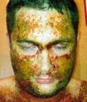Eczema Rash Infection Dad