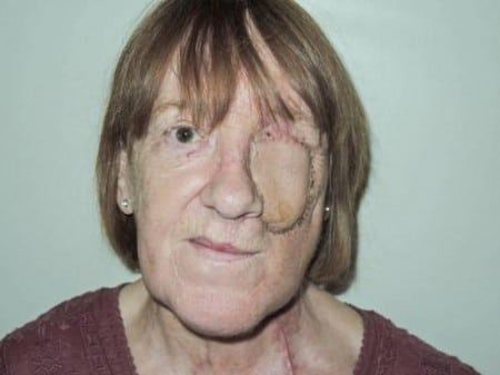 Ann had her face rebuilt using state-of-the-art technology following tumour surgery.