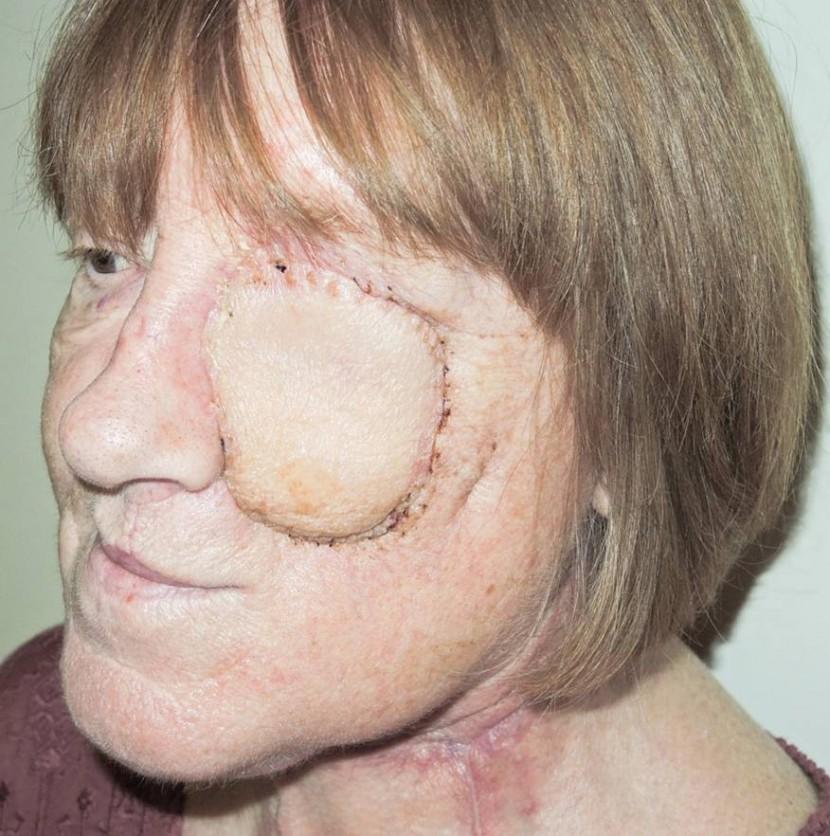 Eye Tumour Face Rebuilt