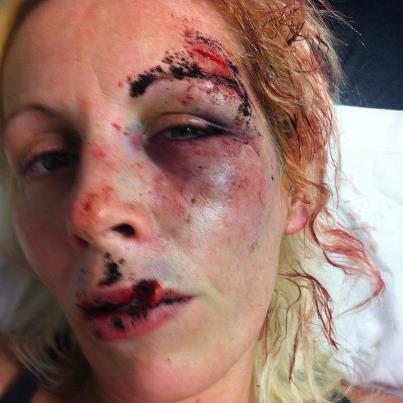 Shelley in hospital
