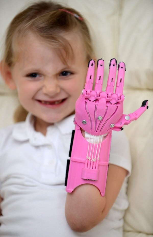 SWNS_PROSTHETIC_HAND_29