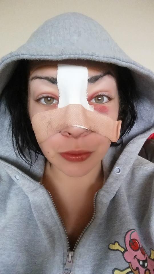 Leoni broken nose