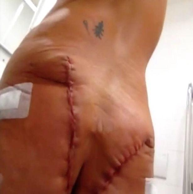 Czech Republic cosmetic surgery disaster: Butchered bum
