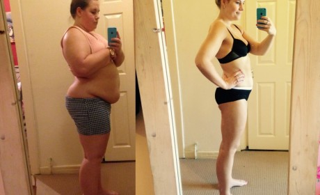 Amazing weight loss before and after photo: I piled on the pounds after breaking legs
