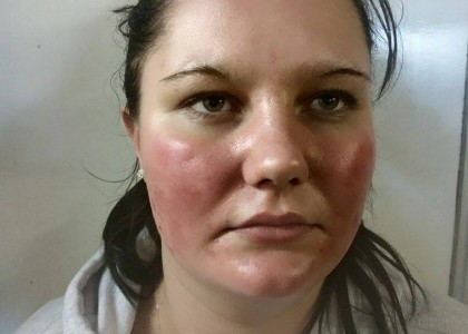 A £1 FACE MASK BURNT MY SKIN OFF!