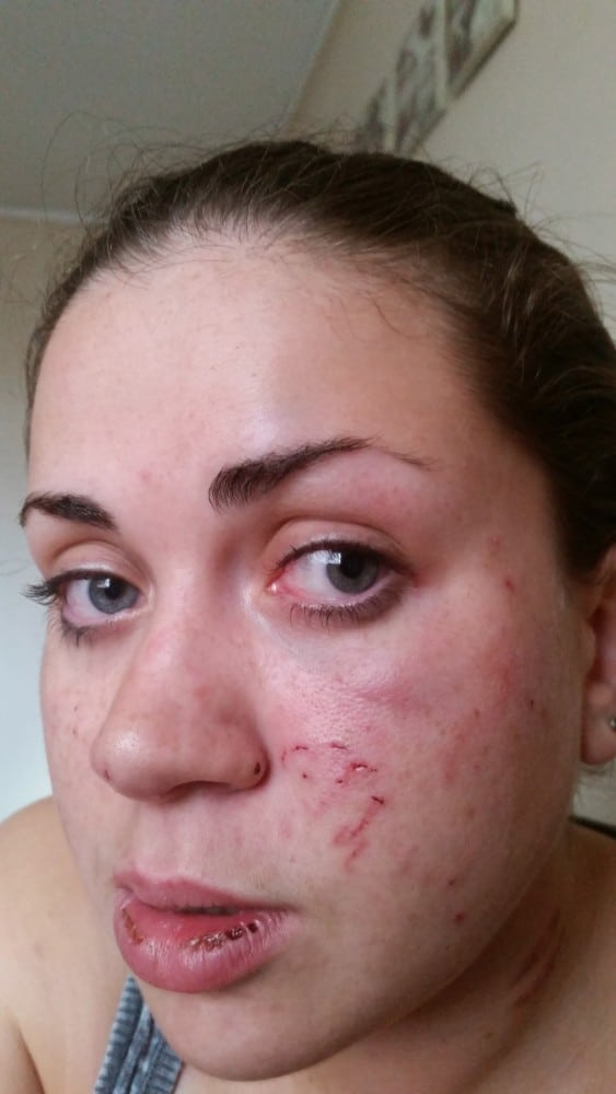 An image showing the extent of Laura's injuries including a black eye, scratch marks to her neck, a bruised chin, a gash to the head after Bell slammed her head into an overhead cabinet, a (5)
