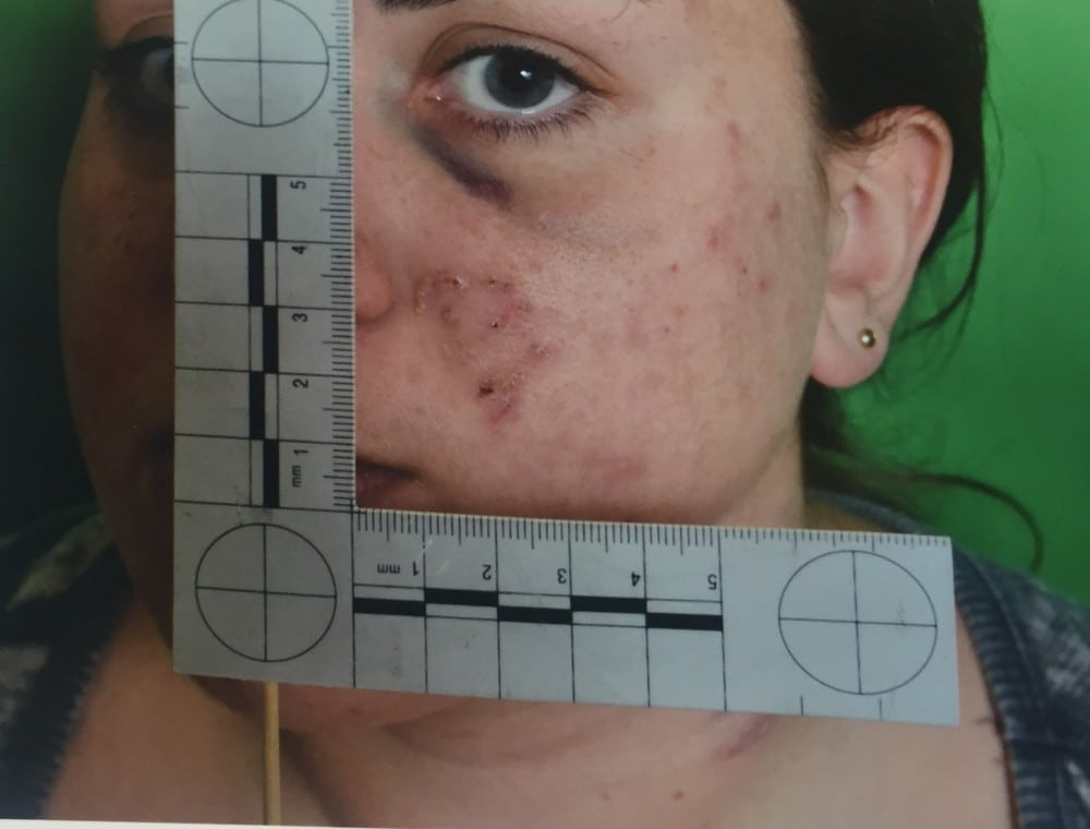 A police injury picture submitted as evidence to the court